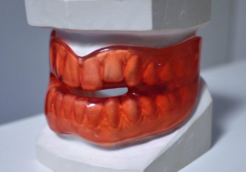 målning av tandkrona